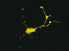 Expression of yellow fluorescence protein-tagged molecule in neuronal cells